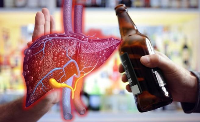 """Karaciğer yağlanmasına karşı """"alkolü bırakın"""""""