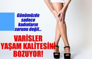 VARİSLER YAŞAM KALİTESİNİ BOZUYOR!