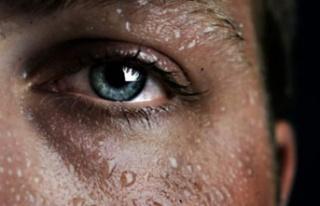 Aşırı terleme (hiperhidroz) nedir?