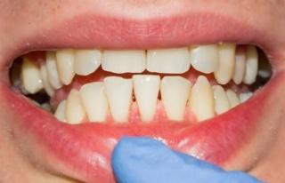 Diş eti mikroorganizmaları organlara zarar veriyor!