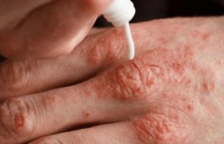 Soğuk havalarda soğuk alerjisine dikkat