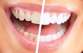 Diş beyazlatma hakkında merak edilen her şey!