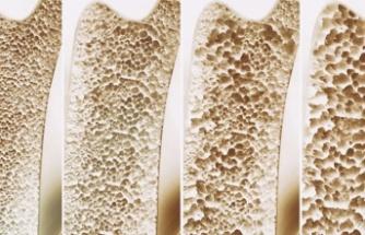 Osteoporozdan korunmak için altın öneriler