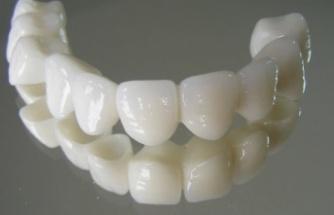 Porselen dişler hakkında merak edilen her şey!